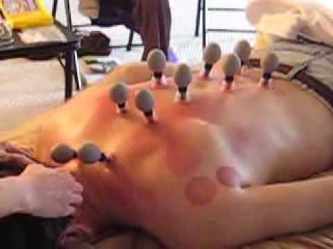 Magnetic Cupping